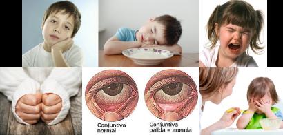 anemia sintomas